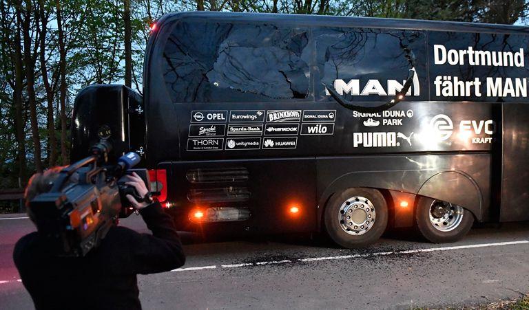 Bartra, operado con éxito tras ataque al autobús del Dortmund