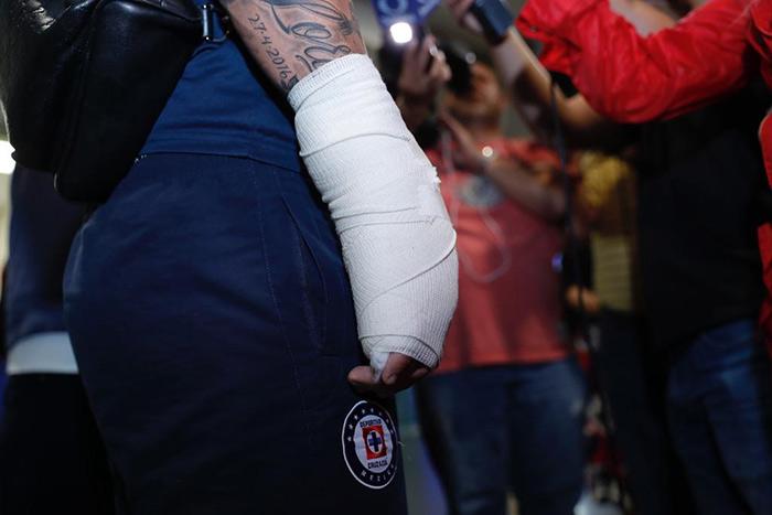 Milton Caraglio sufrió una fractura en la mano