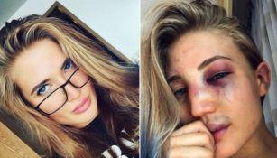 Anastasia Yankova antes y despues de la pelea