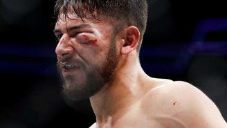 Pantera Rodríguez con el golpe que sufrió durante la pelea