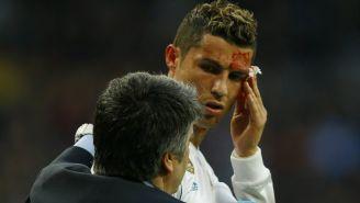 Médico asistió a Cristiano Ronaldo tras recibir golpe en el rostro