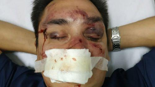 Un periodista fue brutalmente atacado tras divulgar actos de corrupción en Racing