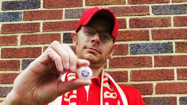 Ryan Gibson muestra su ojo de vidrio