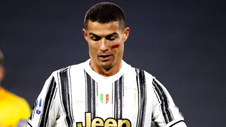 Serie A: ¿Por qué los jugadores lucieron una marca roja en la cara?